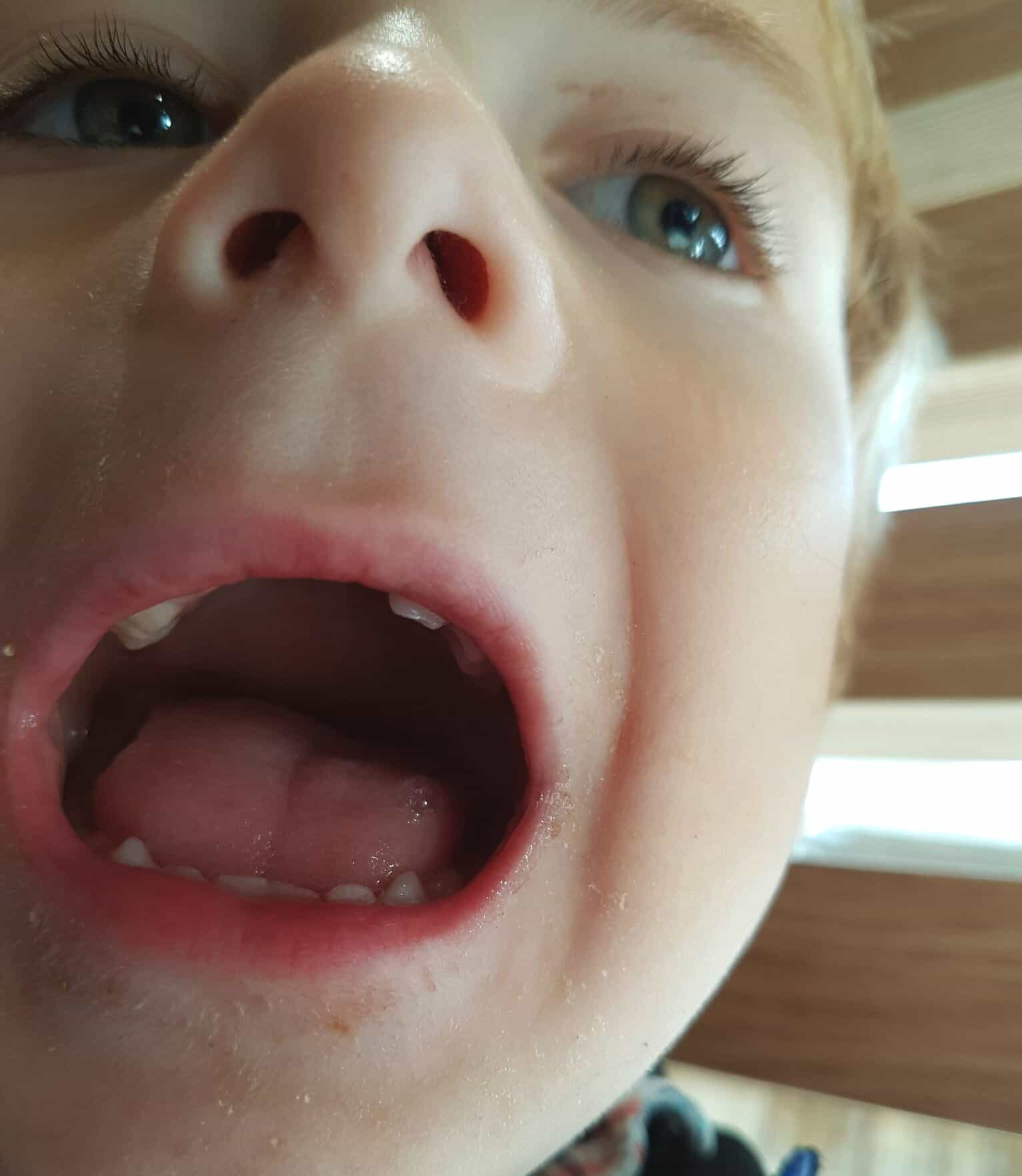 Teeth extraction in young children